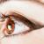 La queratitis y la conjuntivitis, entre las lesiones oculares más frecuentes en el trabajo